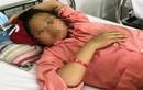 Mổ sinh con thành công cho thai phụ bị sốt xuất huyết nặng