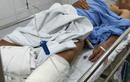 Nguyên nhân mổ nhầm chân ở Bệnh viện Việt Đức là gì?