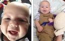 Xót xa bé 8 tháng tuổi qua đời vì viêm màng não