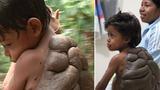 10 ca dị tật kinh dị nhất thế giới