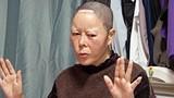 Phát hãi với khuôn mặt dị dạng vì dao kéo của cô gái Hàn
