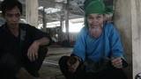Xót xa cụ bà ở Hà Giang khổ sở vì lưỡi khổng lồ