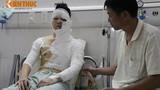 Một sinh viên Hà Nội bị tạt axit lúc nửa đêm