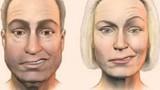 Dấu hiệu bệnh người già tưởng đáng sợ nhưng vô hại