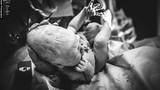 Xúc động những em bé chào đời với khuôn đầu méo xệch