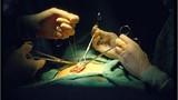 Cận cảnh ca phẫu thuật chuyển giới từ nữ sang nam