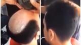 Cách trị hói đầu có một không hai của thợ cắt tóc
