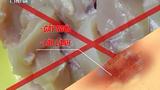Những thực phẩm không nên ăn để tránh bị sẹo lồi