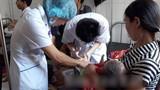 Ăn cỗ cưới ở Yên Bái, 64 người nhập viện vì ngộ độc