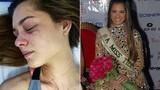 Hoa hậu Trái Đất Venezuela 2012 bị đánh chấn thương cột sống