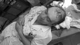 Hà Nội: Bác sĩ bị người nhà bệnh nhân đánh bất tỉnh