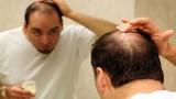 Thuốc trị rụng tóc ảnh hưởng đến bản lĩnh đàn ông