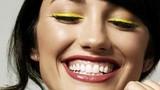 So sánh lợi và hại của từng phương pháp làm răng thẩm mỹ