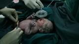 Cận cảnh ca mổ đẻ cho thai phụ sinh 4 gây sốt