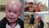 Bệnh lạ khiến cậu bé chết nếu không tắm 2 lần/ngày