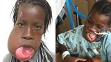 Cô gái có khối u khổng lồ che kín miệng suốt nhiều năm