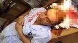 Điểm mặt những vụ hành hung bác sĩ nghiêm trọng gần đây