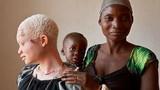 Khám phá gây đau lòng về người bạch tạng ở Tanzania