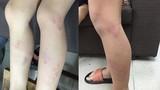 Điểm nóng 24h: Học sinh bị giáo viên đánh tím chân