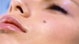 Lý giải những nốt ruồi trên mặt và cơ thể con người