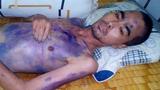 Nhói lòng với hình ảnh tiều tụy của diễn viên Nguyễn Hoàng