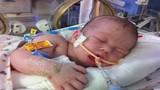 Lý do bé 18 ngày tuổi chết đói dù bú mẹ suốt ngày