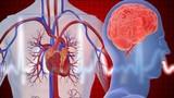 Cách phân biệt đau tim với đột quỵ để tránh mất mạng