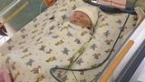 Em bé bị nứt bụng khiến ruột ngoài da sống sót kỳ diệu