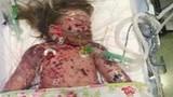 Thương tâm bé gái qua đời đúng ngày Valentine vì viêm màng não