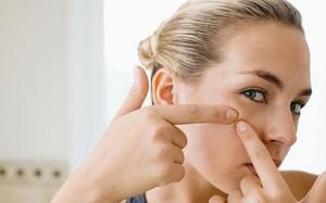 Mặt bị 'tàn phá' vì dùng kháng sinh trị mụn sai cách