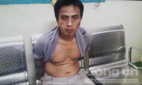 Hiep si Minh Tien bi phoi nhiem HIV khi truy bat ten cuop lieu linh