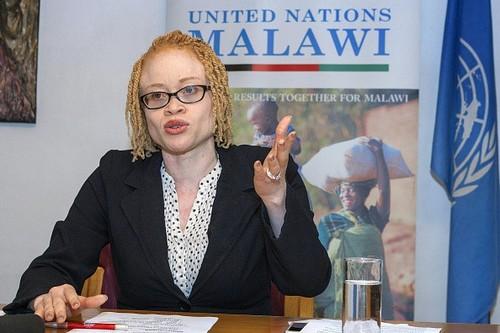 Noi so bi chat tay chan cua nguoi bach tang Malawi
