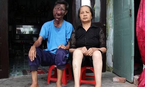 Chuyen tinh cam dong cua ong lao an xin co khuon mat bien dang