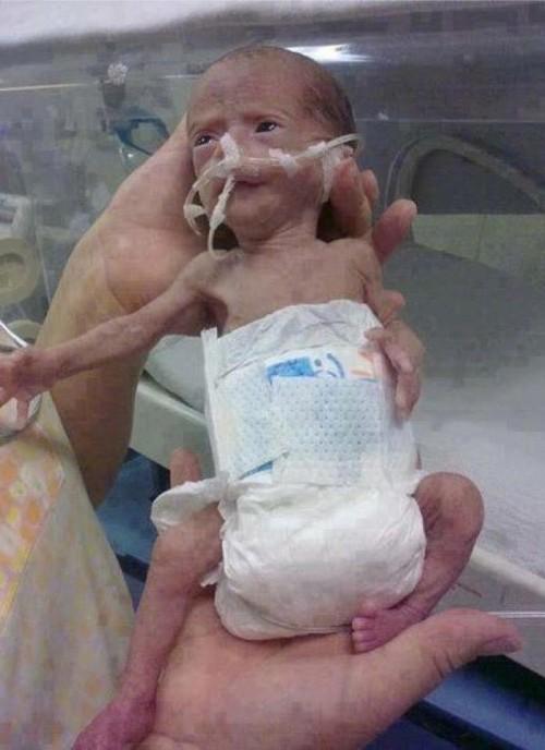 Cau chuyen am ap cua cau be 6 tuoi khi sinh chi nang 1.2kg-Hinh-2