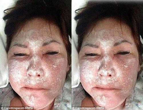 3 ba thim xinh dep bi tan hoang mat may vi tiem botox gia la mo bo-Hinh-2