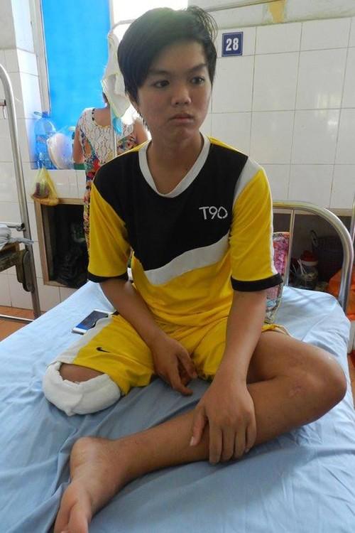 Thieu nien o Dong Thap bi cua chan: Do bac si thieu kinh nghiem