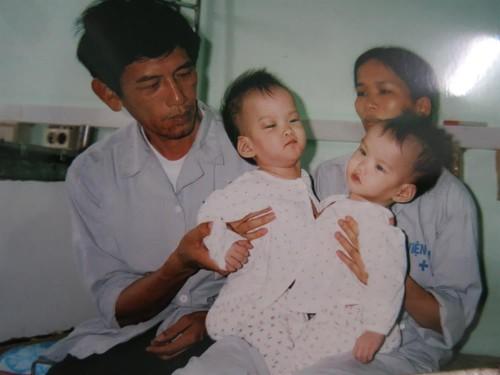 """Ong Tien"" cua nhung cap song sinh dinh nhau-Hinh-2"