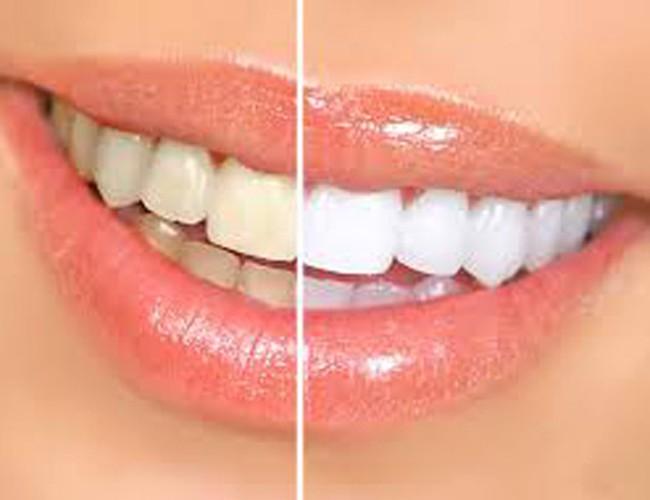Kết quả hình ảnh cho Bàn chải đánh răng có các lựa chọn hoàn hảo