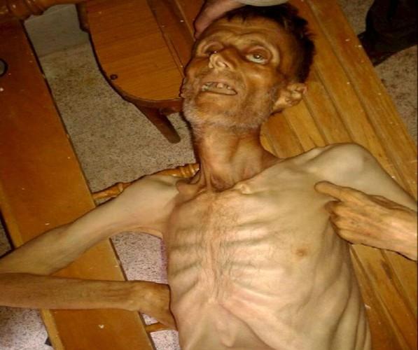 Khung hoang nhan dao o Syria qua anh-Hinh-3