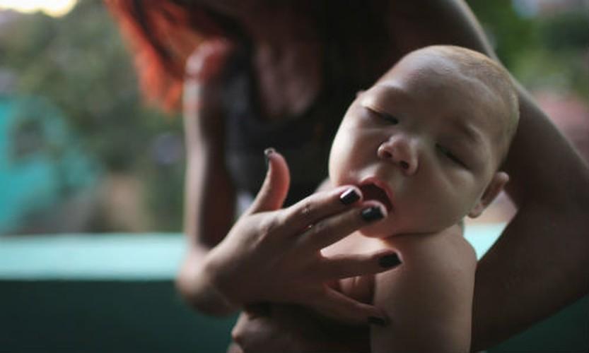 Chum anh virus Zika hoanh hanh o Chau My