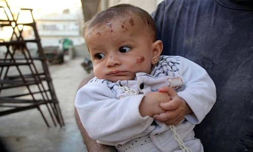 Khoanh khac cuu be so sinh khoi dong do nat o Syria