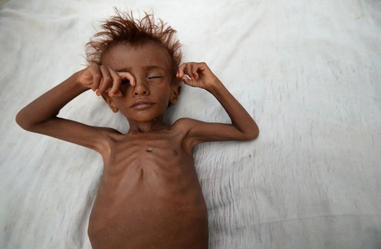 Canh tan hoang o dat nuoc Yemen ben bo vuc sup do-Hinh-10