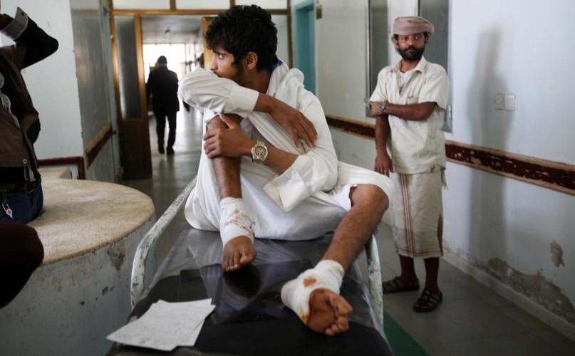 Canh tan hoang o dat nuoc Yemen ben bo vuc sup do-Hinh-2