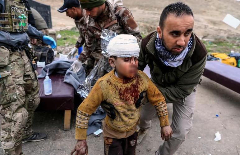 Can canh benh vien da chien o thanh pho Mosul-Hinh-2