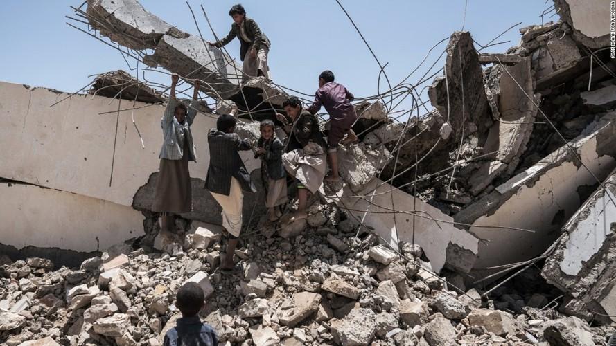 Toan canh cuoc khung hoang nhan dao tram trong o Yemen-Hinh-10