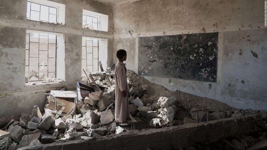 Toan canh cuoc khung hoang nhan dao tram trong o Yemen-Hinh-11