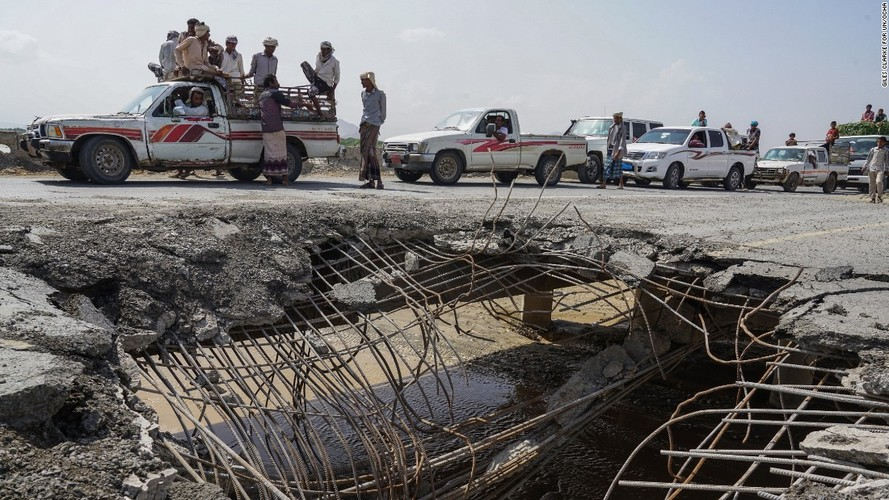 Toan canh cuoc khung hoang nhan dao tram trong o Yemen-Hinh-13