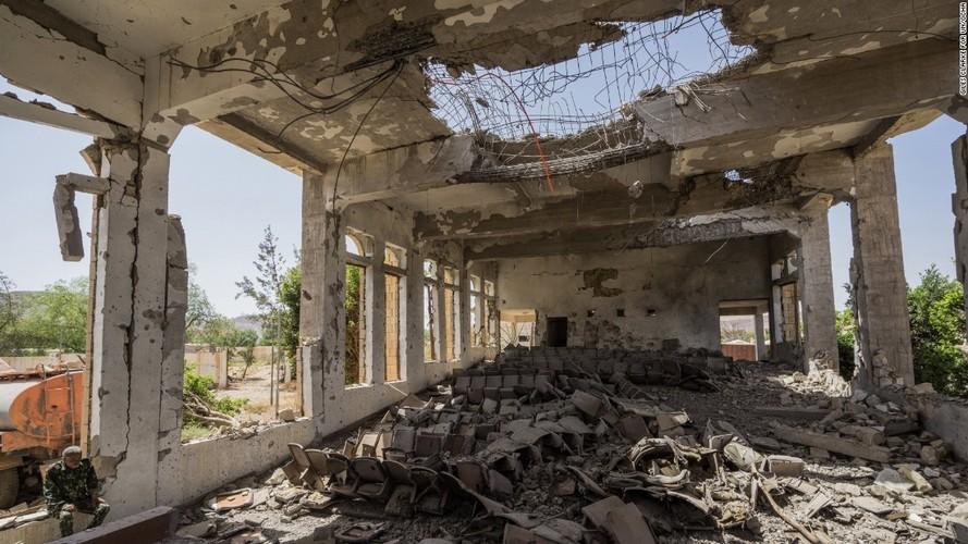 Toan canh cuoc khung hoang nhan dao tram trong o Yemen-Hinh-15