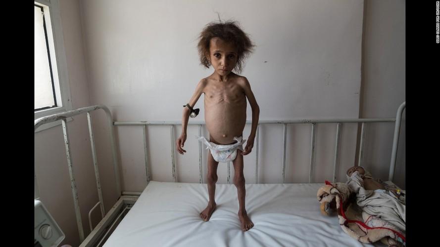 Toan canh cuoc khung hoang nhan dao tram trong o Yemen-Hinh-2