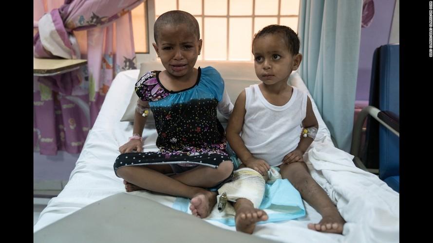 Toan canh cuoc khung hoang nhan dao tram trong o Yemen-Hinh-4